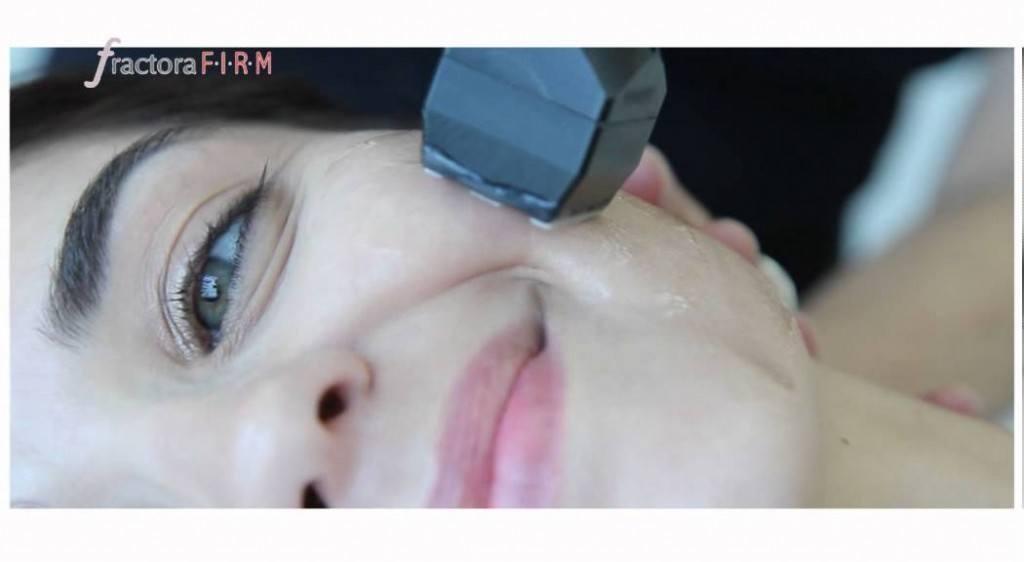 Trẻ hóa da bằng laser