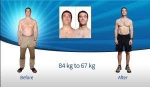 liệu trình giảm cân