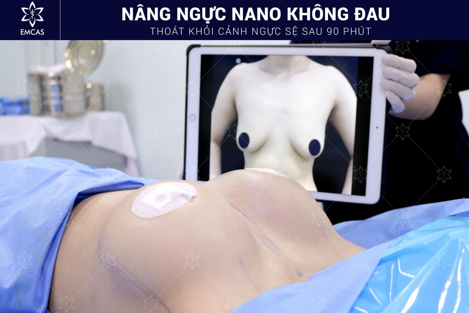 What is sagging breast augmentation, sagging breast augmentation methods, where is sagging breast augmentation is good, what is the best practice for a motor vehicle, methods of a car service, a good start